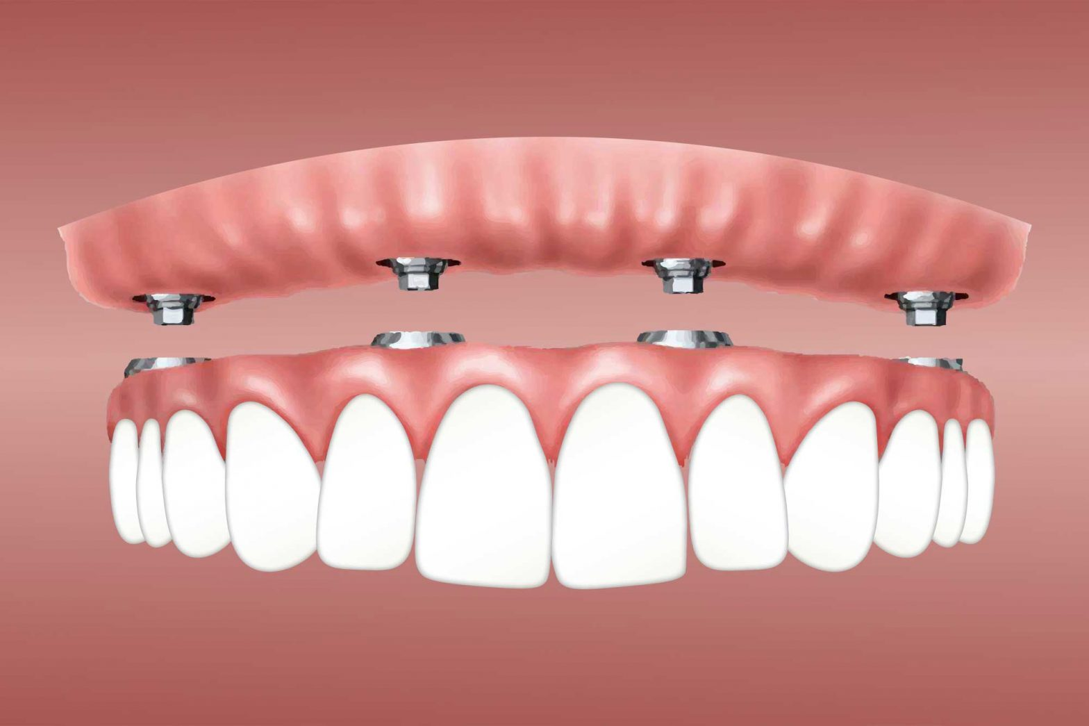 The Ten Commandments Of Full Mouth Dental Implants In Mexico